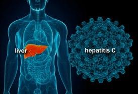 getty_rm_illustration_of_hepatitis_c
