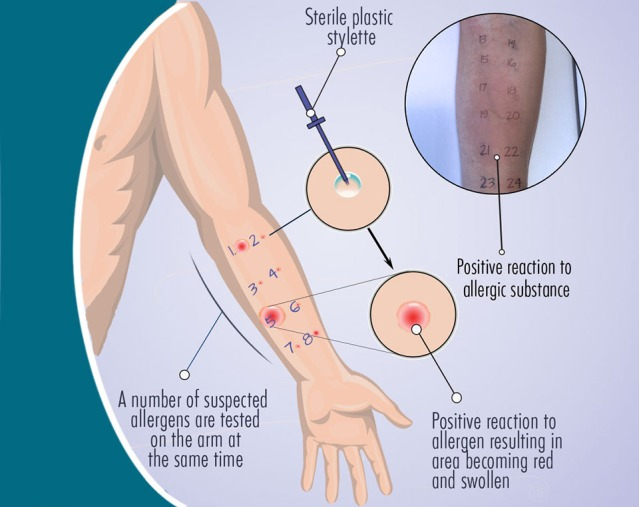 skin-prick-test-illustration-1160-px-v3