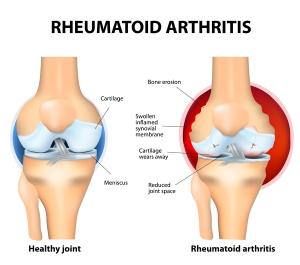 joint-with-rheumatoid-arthritis