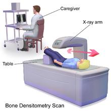 Blausen_0095_BoneDensitometryScan