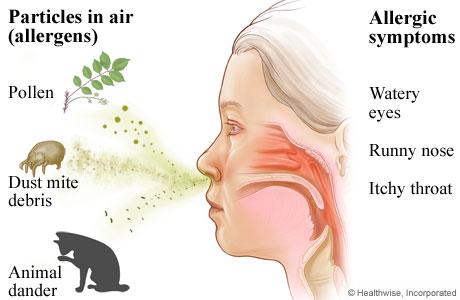Allergic-Rhinitis-Market.jpg
